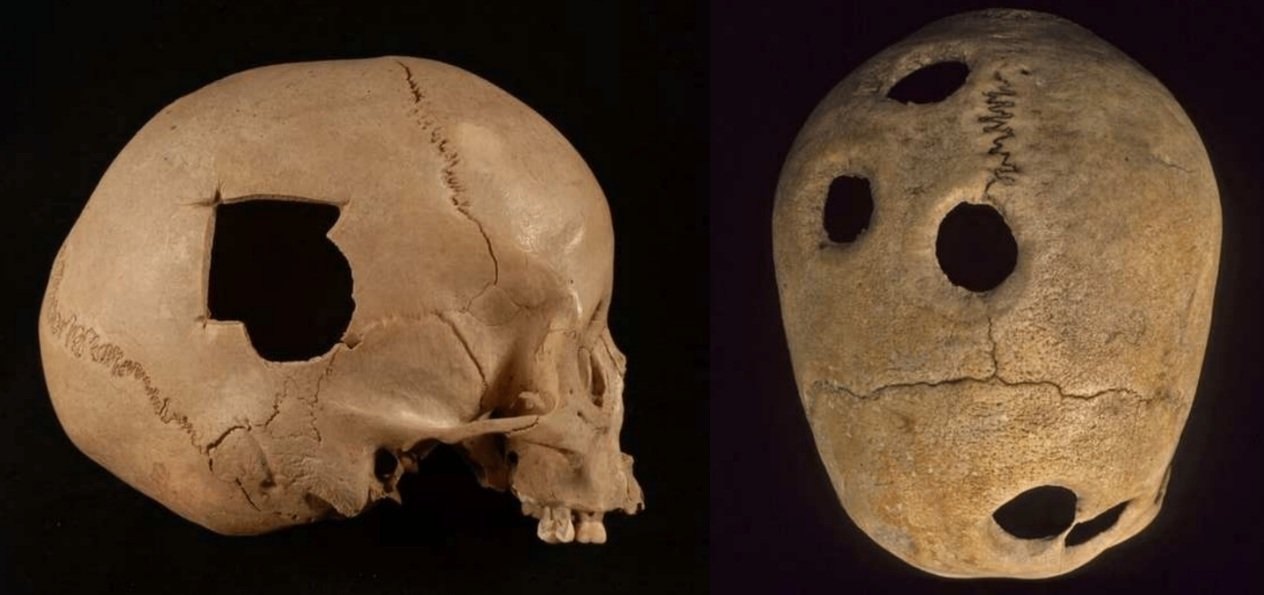 Trepanation was common in various cultures in ancient times.
