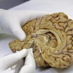 The zombie genes of the brain
