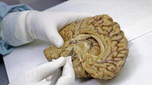 Los genes zombis del cerebro se identificaron luego de estudios en tejidos cerebrales donados.