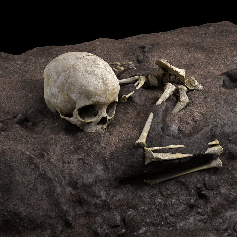 The remains found were covered with plaster of paris to prevent their disintegration during analysis.