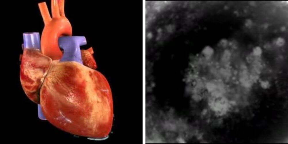 The beating stem cell heart is another scientific achievement.