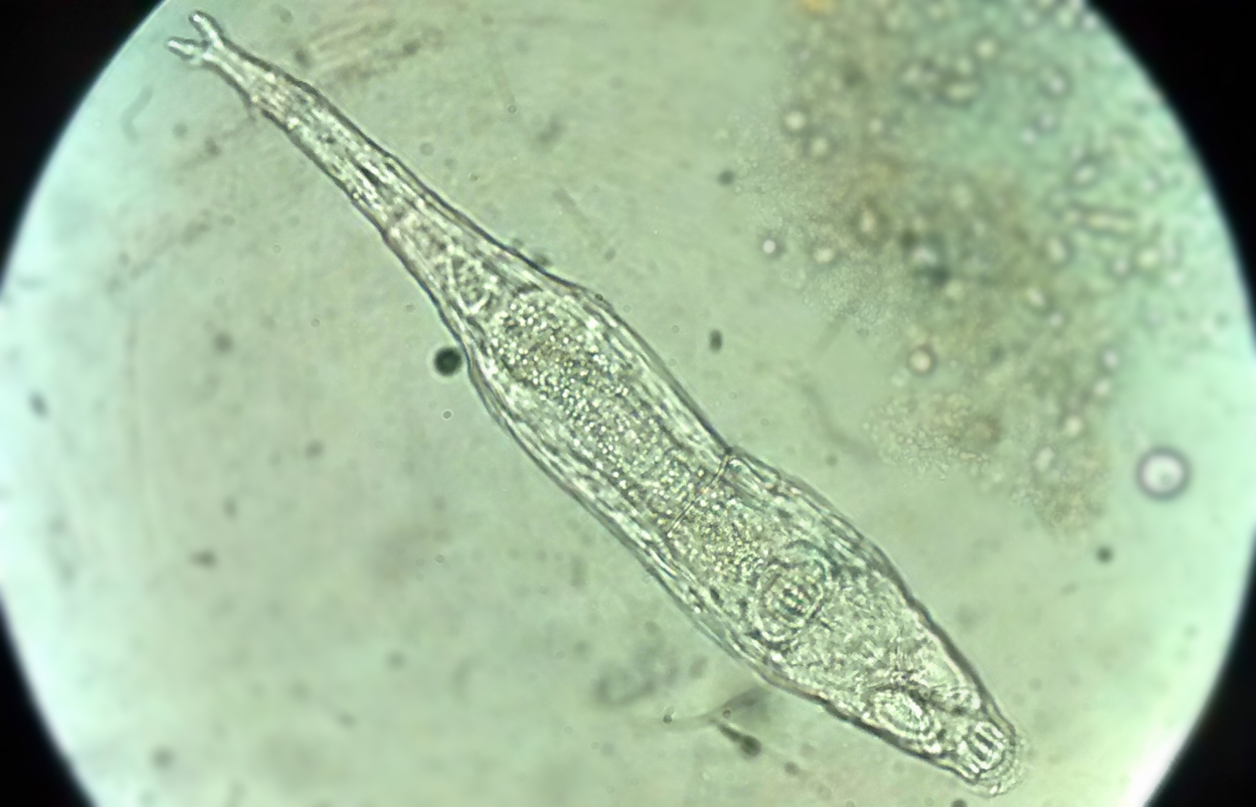 The animal that frozen 24,000 years ago, a rotifer.