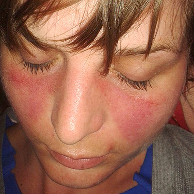 lupus presents with red spots