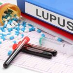 Lupus is an autoimmune disease that not everyone knows about